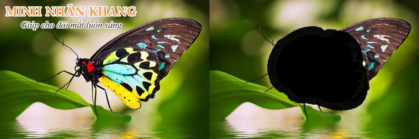 Thoái hóa điểm vàng có thể gây mất thị lực ở trung tâm của hình ảnh